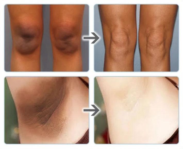 Body Pigmentation Skin Care
